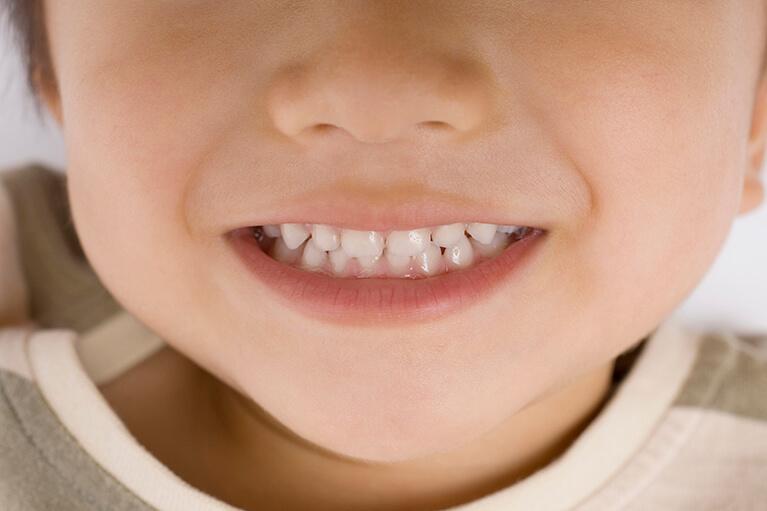 フッ素塗布は、生えたての乳歯や永久歯に高い予防効果を発揮します